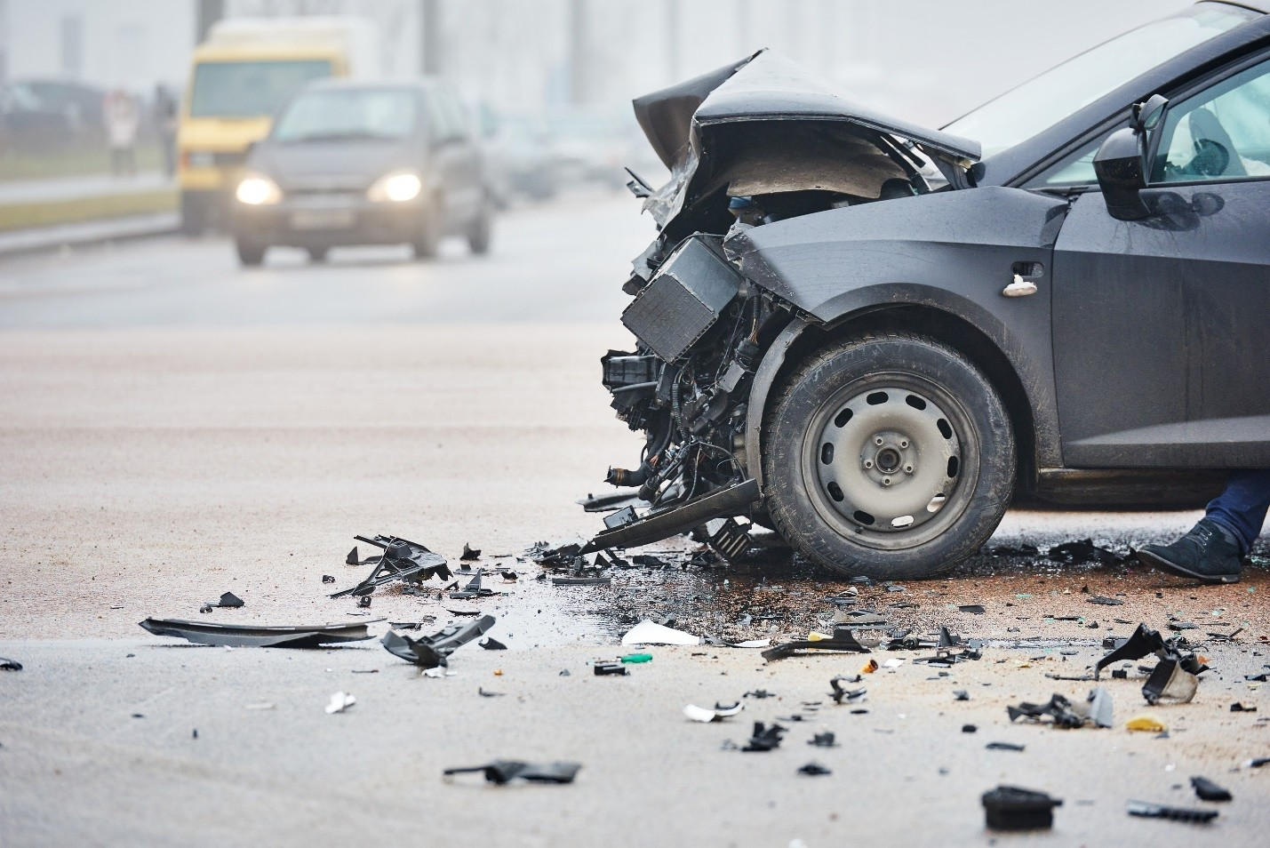 car accident injuries queens ny - How to Sue for a Concussion from a Car Accident in New York City