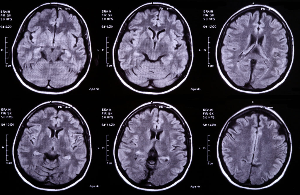 Brain Scans 2 2 1024x666 - Queens Brain Injury Lawyers