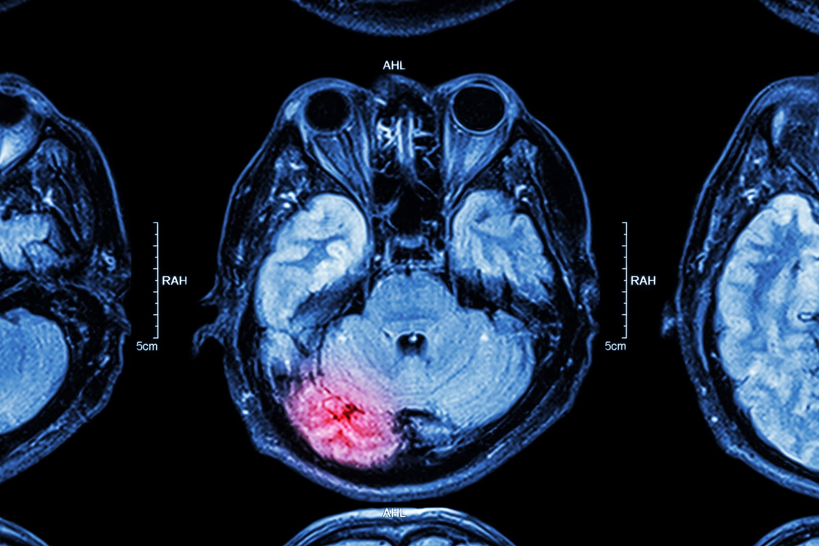 Causes of Brain Injuries in NYC